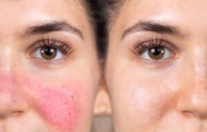 close up side by side image of woman's face before and after addressing root causes of her rosacea