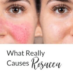 Collage - before and after photo of Caucasian woman with rosacea and title text overlay