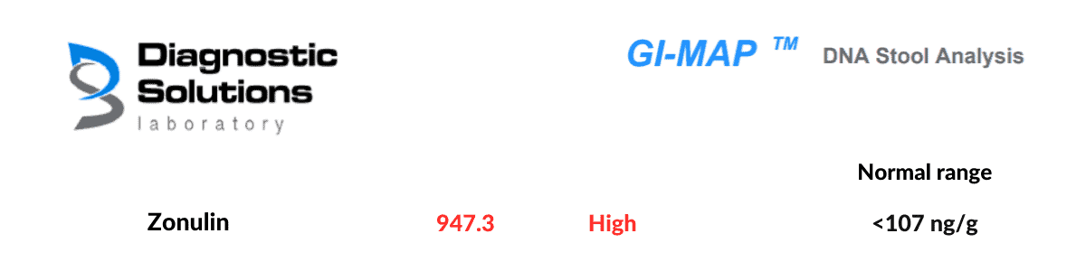 section of GI MAP stool test showing high zonulin as indicator of Leaky Gut